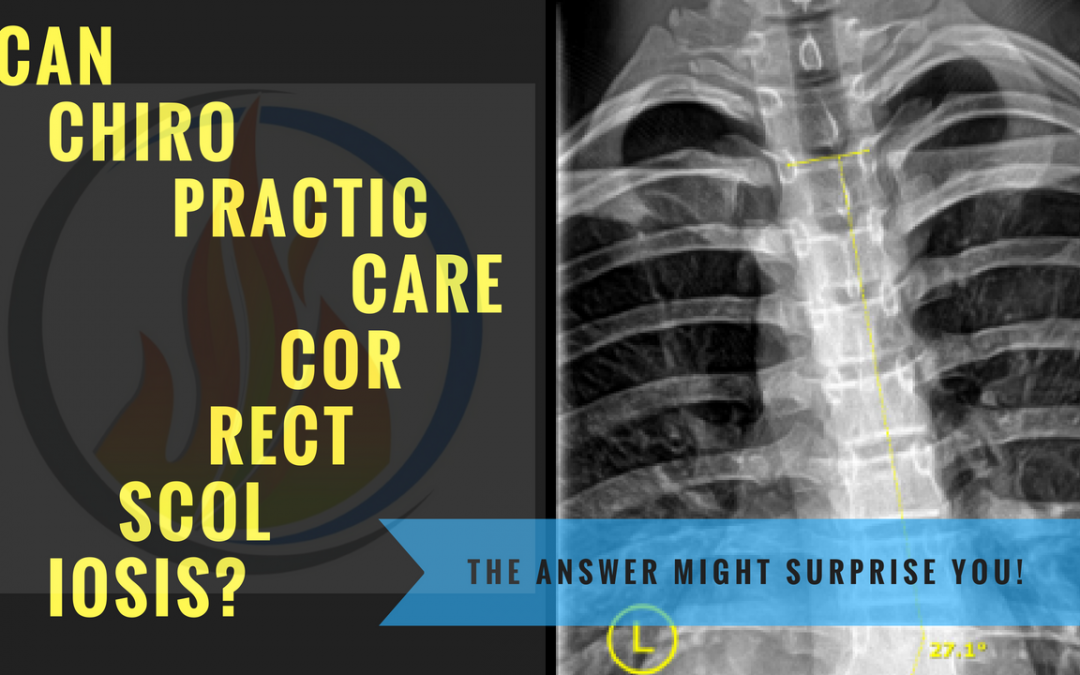 Can Chiropractic Care Correct Scoliosis?